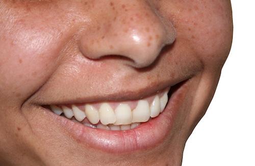 Ubezpieczenie na leczenie stomatologiczne w UK